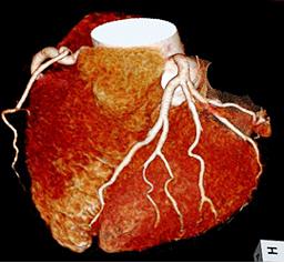 正常な冠動脈